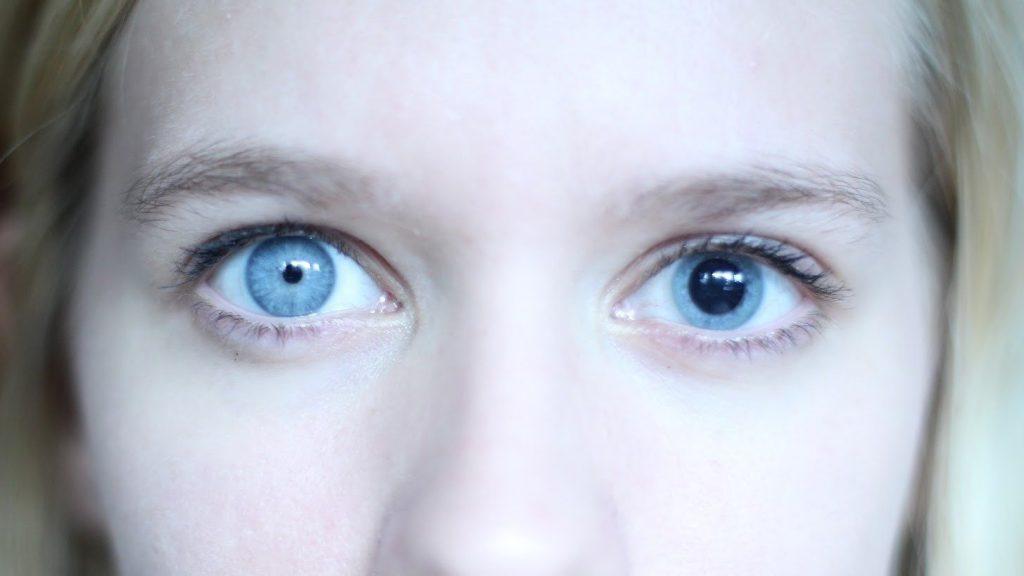 Амблиопия (ленивый глаз): симптомы и причины появления
