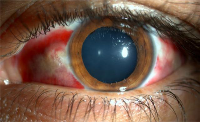 Диффузный ламеллярный кератит: симптомы и причины