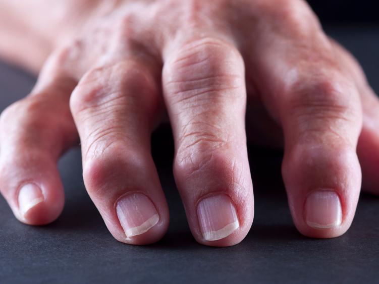 Некрасивые суставы на руках: причины и лечение