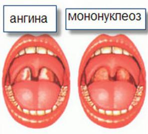 Различия ангины и мононуклеоза у детей