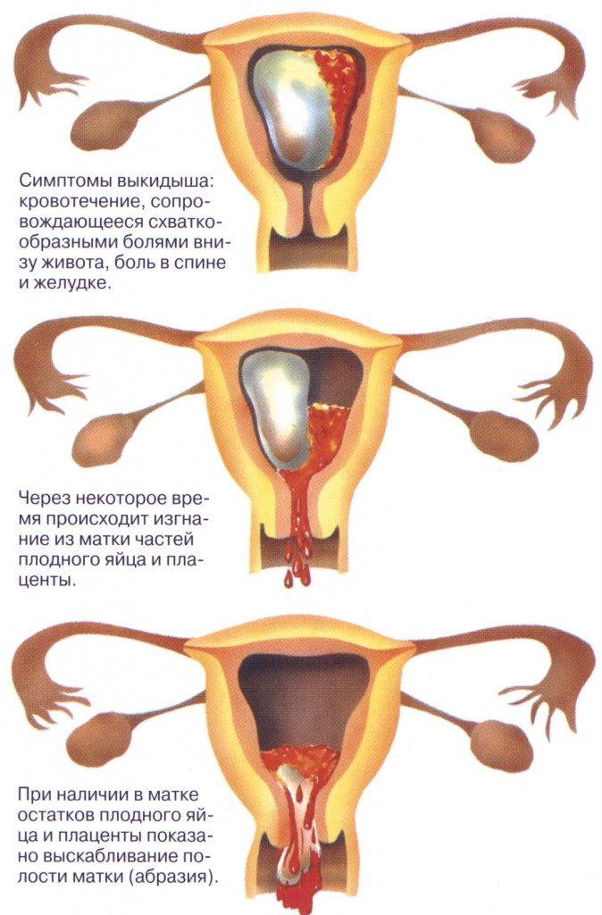 симптомы выкидыша на ранних сроках беременности