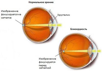 Сравнение больного и здорового зрительного органа
