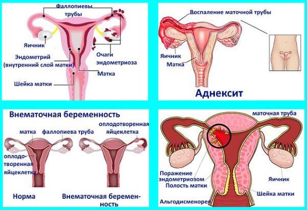 Почему месячные 2 раза в месяц у женщин и подростков