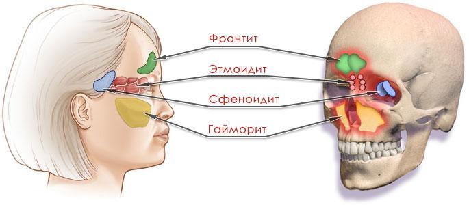 Сфеноидит у взрослых: причины, симптомы, лечение