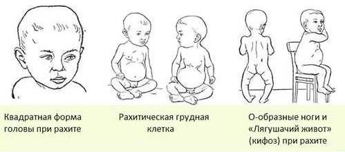 признаки рахита у грудничков