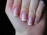 Проблемы с ногтями после снятия шеллака: что делать?