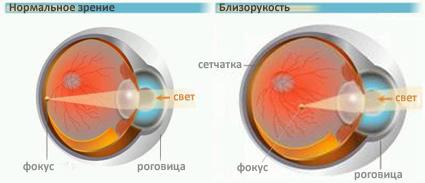 Патологическое состояние зрительного органа