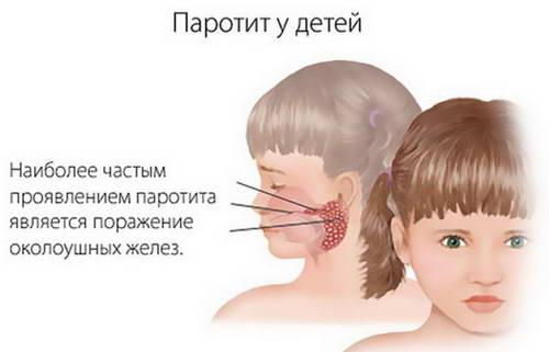 Основной симптом свинки у детей