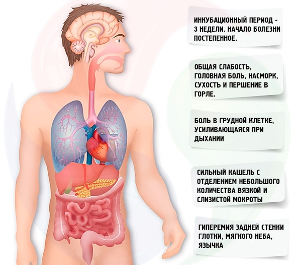 Пневмония у взрослых. Симптомы и лечение в домашних условиях