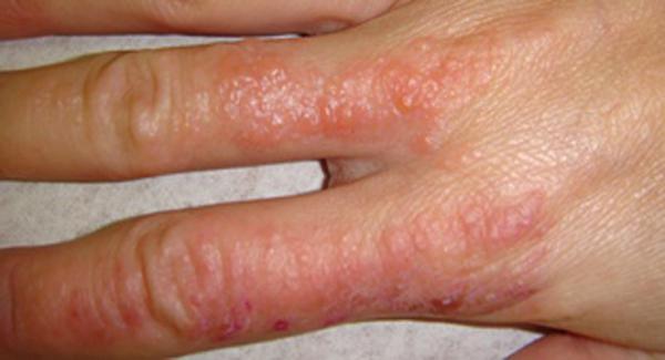 Водяные пузырьки на руках: причины и лечение