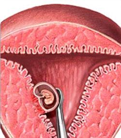 выскабливание замершая беременность
