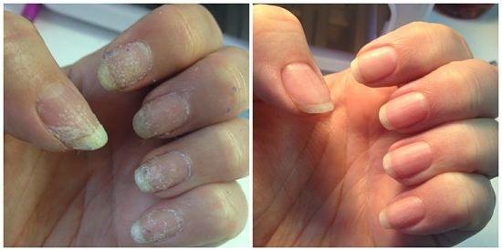 До и после лечения ногтей