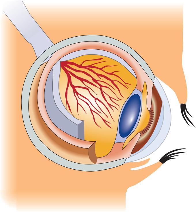 Строение больного глаза