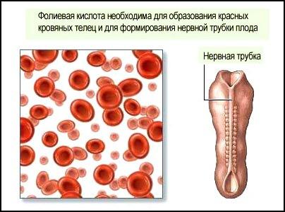 дефицит фолиевой кислоты может провоцировать дефекты нервной трубки плода