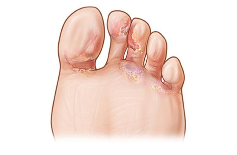 Эпидермофития стоп: фото, симптомы и лечение