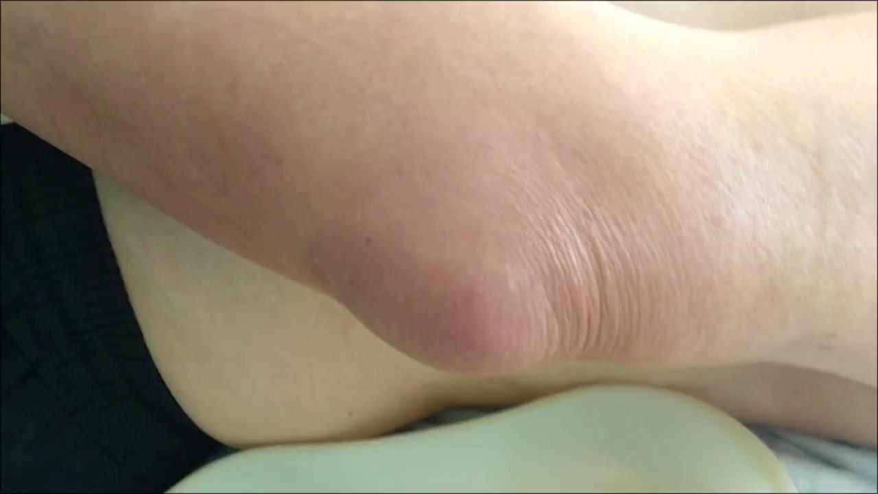 Мягкая шишка на локте под кожей: что это, причины и лечение