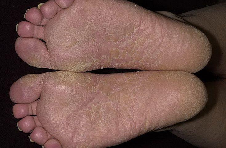 Трещины на ступнях: причины и лечение в домашних условиях