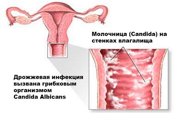 Причины молочницы у женщин и как с ней бороться в домашних условиях