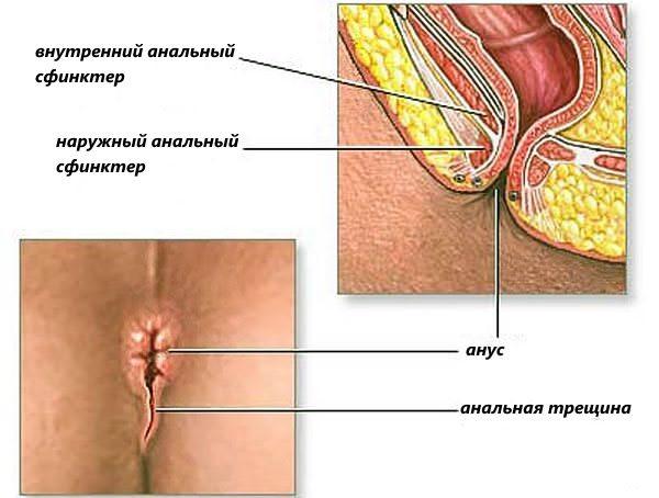 Трещина заднего прохода: симптомы и лечение, фото