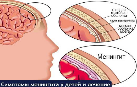Менингит у новорожденных детей