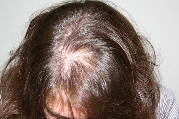 что являет собой диффузное выпадение волос у женщин