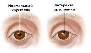 Так выглядит катаракта