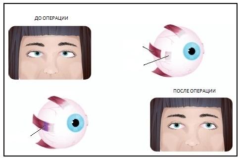 Особенности укорачивания мышцы глаза