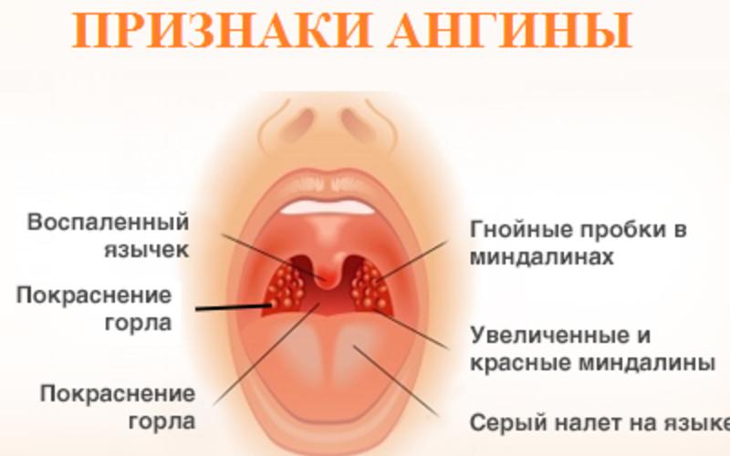 Лечение гнойной ангины лечение в домашних условиях у взрослого