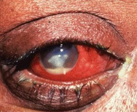 Бактериальный кератит: симптомы и лечение
