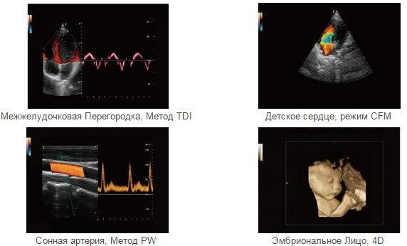 Виды УЗИ допплер при беременности