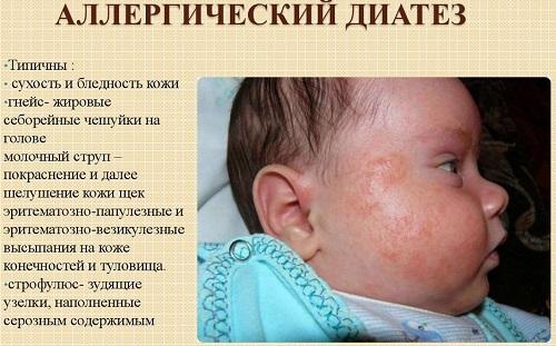 аллергическая сыпь у грудничка
