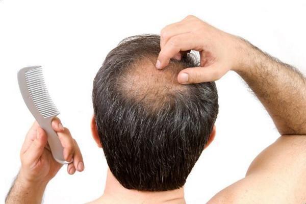 базовые причины выпадения волос в молодом возрасте