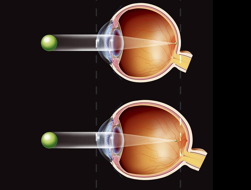 Нормальный глаз и патология в форме миопии