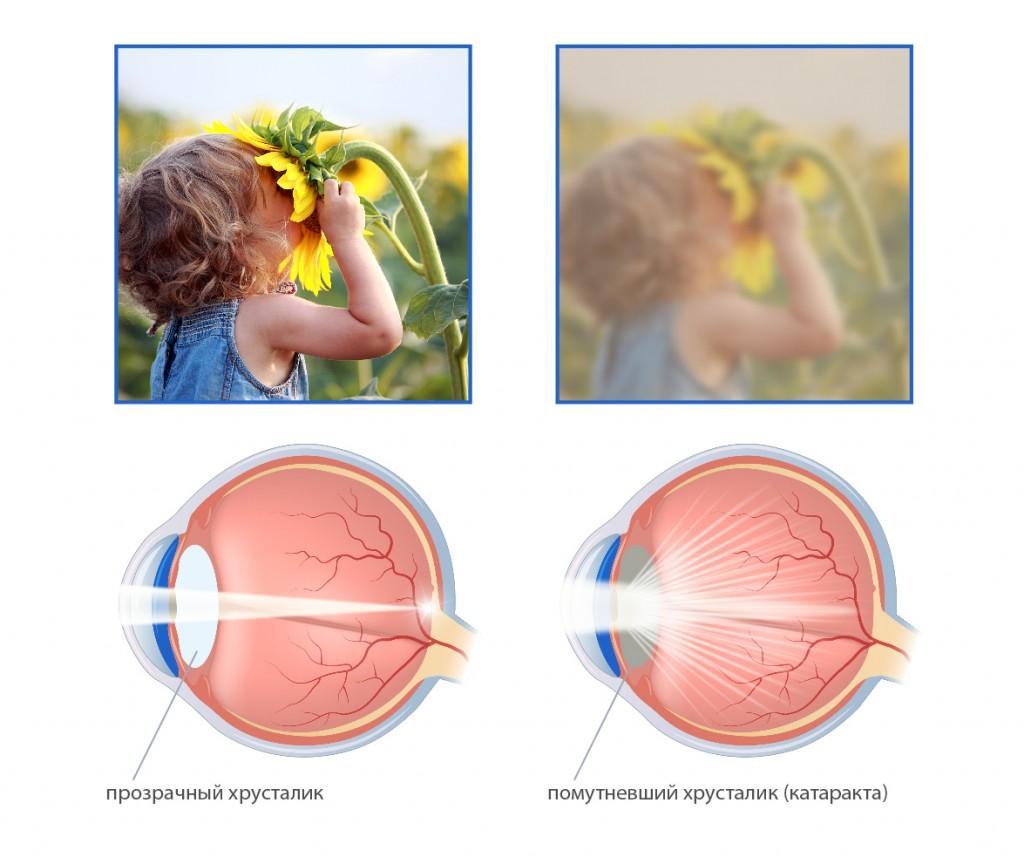 Так человек видит с катарактой