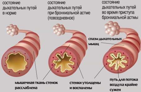 Состояние дыхательных путей при бронхиальной астме у детей